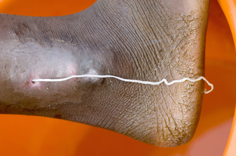 A patient with a guinea worm emerging, at the Savelugu Case Containment Center. (Photo by Louise Gubb/Corbis via Getty Images)